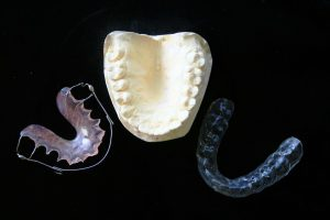 orthodontic-315784_1280
